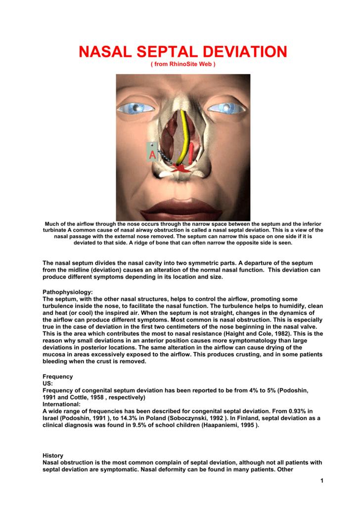 Nasal Septal Deviation