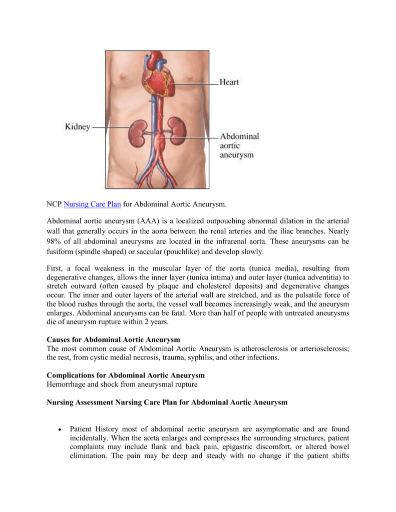 NCP Nursing Care Plan for Abdominal Aortic Aneurysm. Abdominal