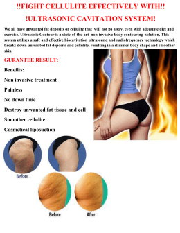 !!FIGHT CELLULITE EFFECTIVELY WITH!! !ULTRASONIC