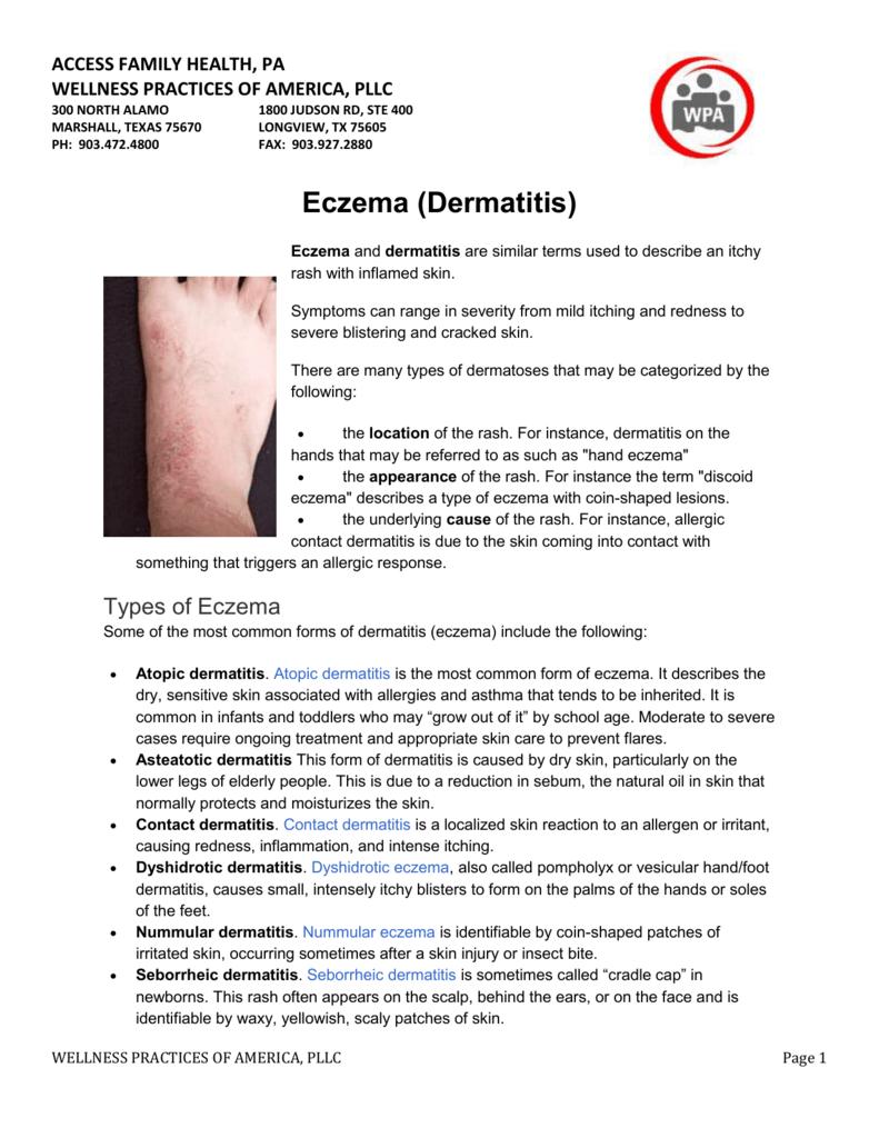 Eczema Treatment - Wellness Practices of America
