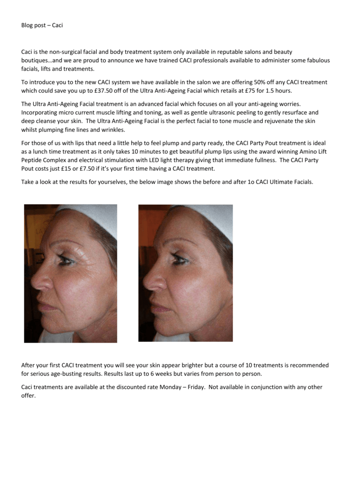 Opinion body ultimate facial toning system opinion