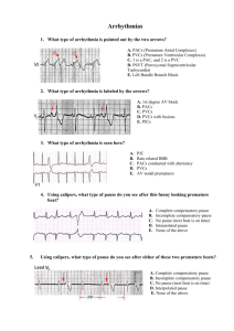 What type of arrhythmia is pointed out by the two arrows