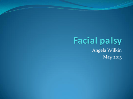 Facial palsy - South Tees Hospitals NHS Trust