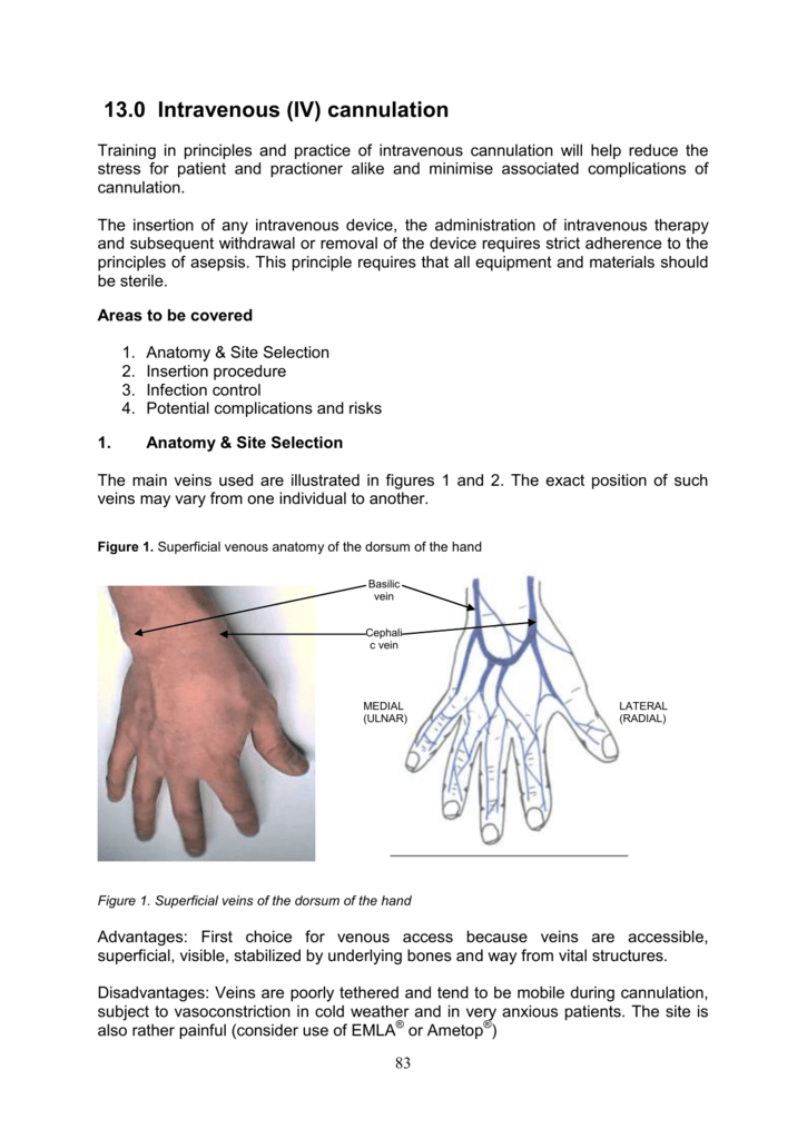 13.0 Intravenous (IV) cannulation