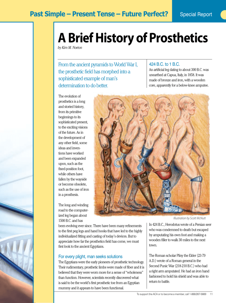 A Brief History of Prosthetics