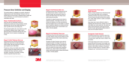 Pressure Ulcer Definition and Staging