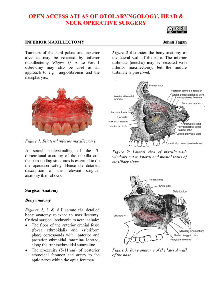 sinusitis ethmoidalis operation