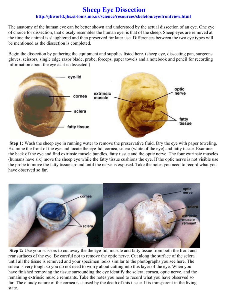 eye dissection Anatomy lab eye dissection page 3/6 name: _____ here, the lens works like a magnifying glass, making the words look bigger the lens of.
