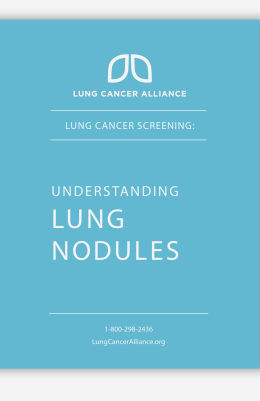 lung nodules - Providence Health & Services