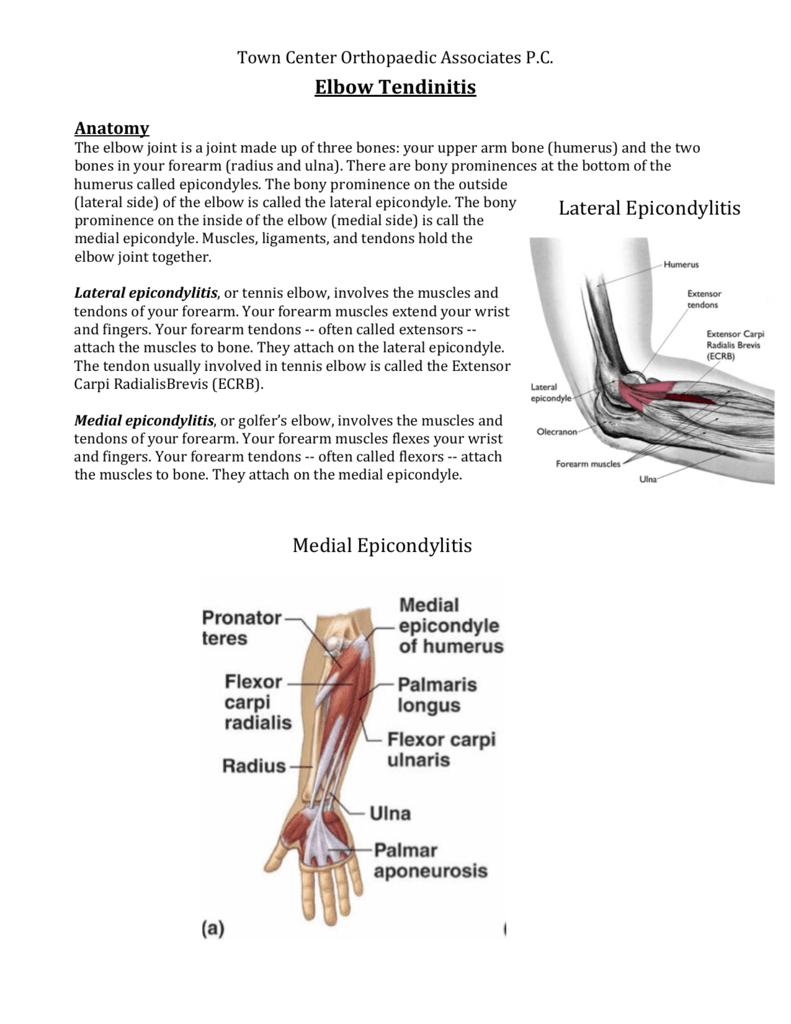 Elbow Tendinitis Medial Epicondylitis Lateral Epicondylitis