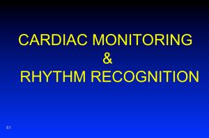 CARDIAC MONITORING & RHYTHM RECOGNITION
