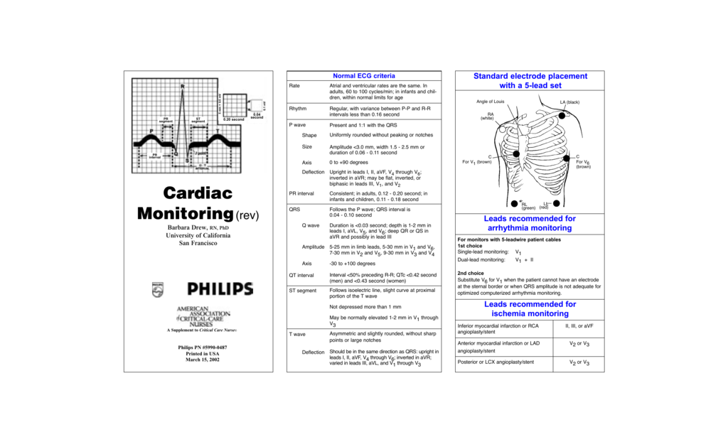 Philipsaacn cardiac monitoring pocket reference ccuart Choice Image