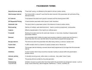 pacemaker terms