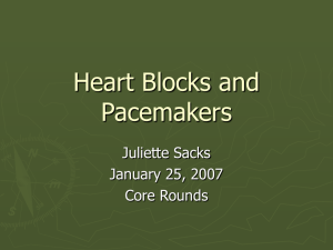 Heart Blocks and Pacemakers - Calgary Emergency Medicine