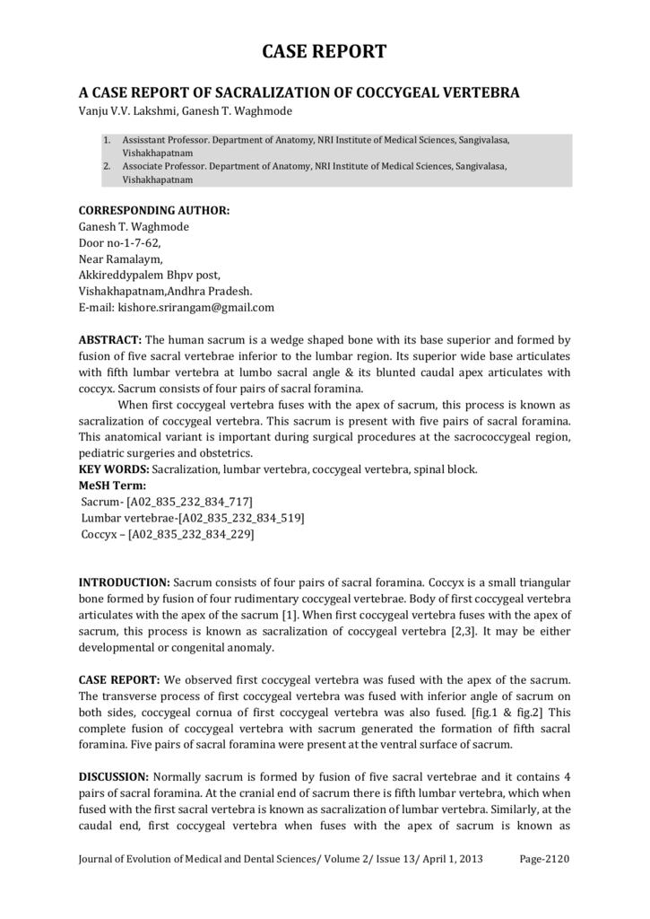 A Case Report Of Sacralization Of Coccygeal Vertebra