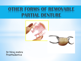 other forms of removable partial denture [ppt]