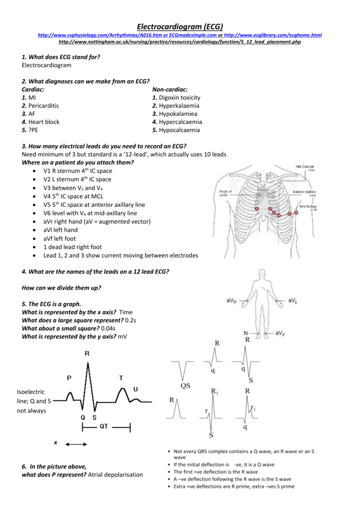 2 what diagnoses can we make from an ecg what diagnoses can we make from an ecg ccuart Image collections