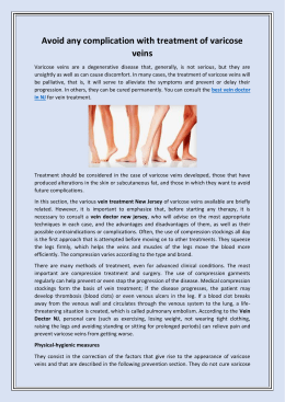 Avoid any complication with treatment of varicose veins
