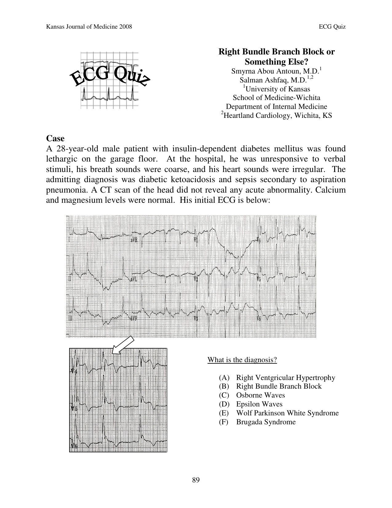 ECG: RBBB Differential Diagnosis Cheat Sheet